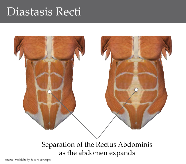 My Experience with Diastasis Recti (Separation of the Abdominal Muscles) After Birth
